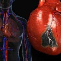 Таблетки при приступе инфаркте