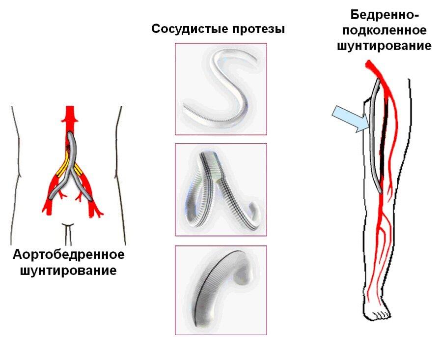 Шунтирование вен на ногах