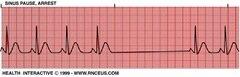 Лечение  Синоаурикулярная блокада  Блокады сердца