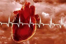 ЭКГ. Инфаркт миокарда передней стенки левого желудочка