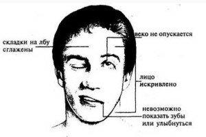Какие симптомы при инсульте у мужчин