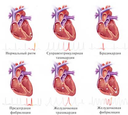 ЭКГ пример синусовая тахикардия