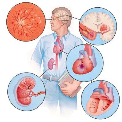 Симптоматическая артериальная гипертензия или вторичная: причины появления