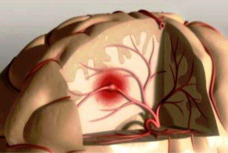 Стволовой инсульт – что это такое, прогноз выздоровления