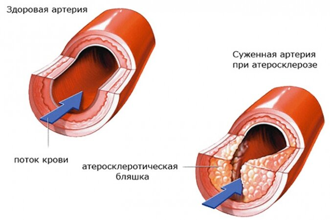 Симптомы атеросклероза коронарных артерии
