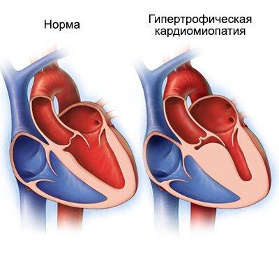 Диффузные изменения желудочков сердца