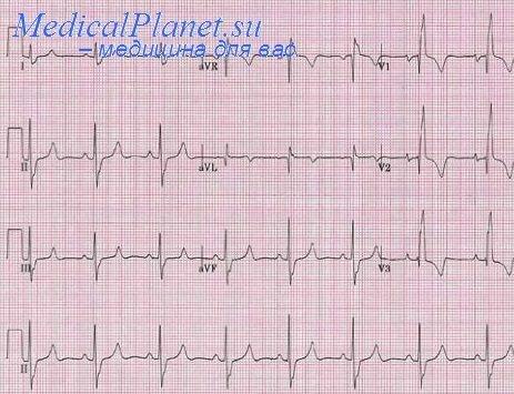 Легочное сердце при туберкулезе ⋆ Лечение Сердца