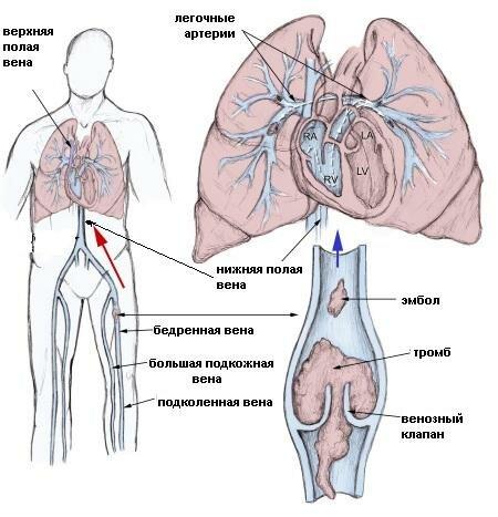 Лечение варикоза лекарственными препаратами