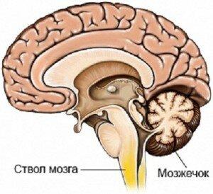 Операция на голове после инсульта
