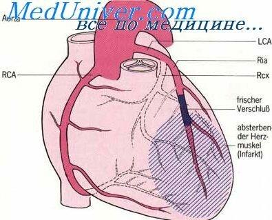 Левая коронарня артерия крупным плано фото фото 275-569