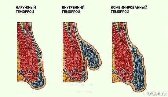 Реферат геморрагический васкулит у детей