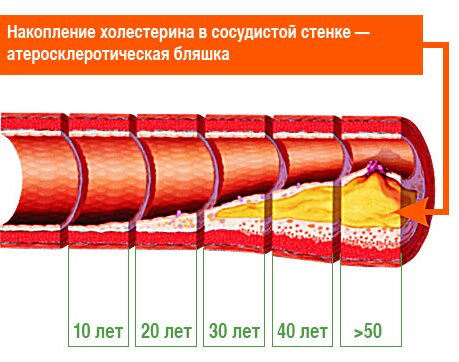 атеросклероз и эректильная дисфункция