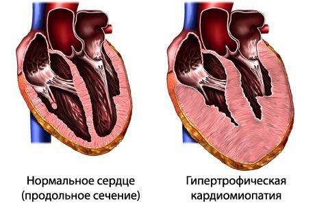 Гипертрофическая кардиомиопатия у кошек симптомы