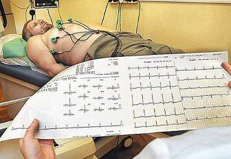 Осложнения после шунтирования сосудов сердца