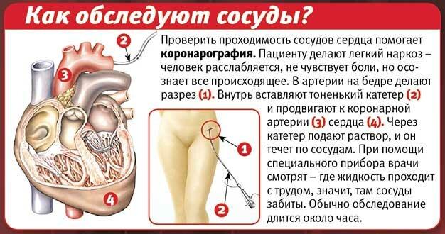 того, какое обезболивающее применяют после шунтирования марки