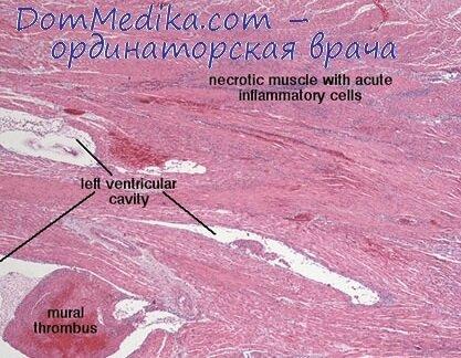 меню после инфаркта миокарда для мужчин меню