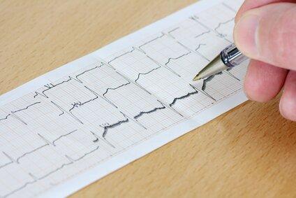 Аритмия в положении лежа ⋆ Лечение Сердца