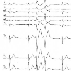 Опасны ли желудочковые экстрасистолы ⋆ Лечение Сердца
