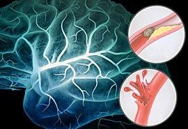 Может ли быть температура при инфаркте или инсульте