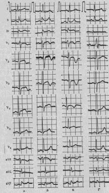 Мелкоочаговый инфаркт миокарда что это