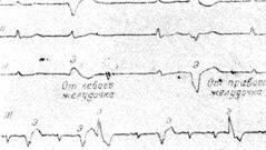 monotopnye jekstrasistoly 1 - Monotope ventrikuläre Extrasystolen was ist das?