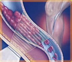 Вылезли вены на ногах при беременности