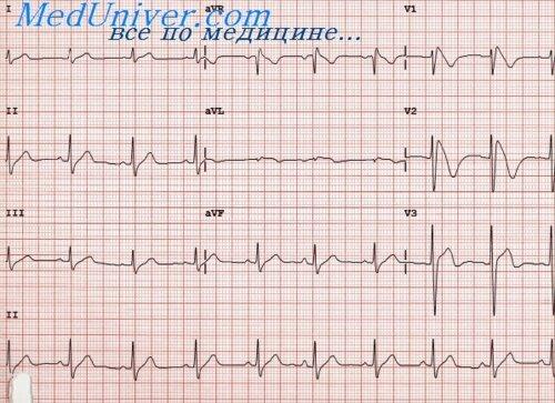 Особенности инфаркта миокарда правого желудочка