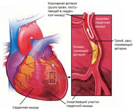 Инфаркт миокарда симптомы у мужчин последствия