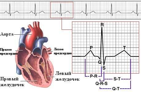 Инфаркт на эхо сердца