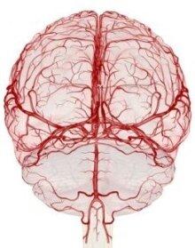 препараты после инсульта головного мозга