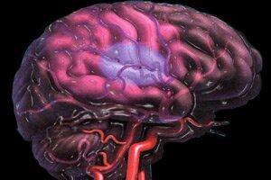 Церебральный атеросклероз сосудов головного мозга: что это, причины, симптомы, диагностика, лечение и профилактика