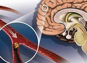 Как укрепить сосуды головного мозга после инсульта