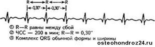 Таблетки от сердцебиения список