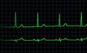 Синусовая брадикардия лечение народными средствами - Лечение Сердца