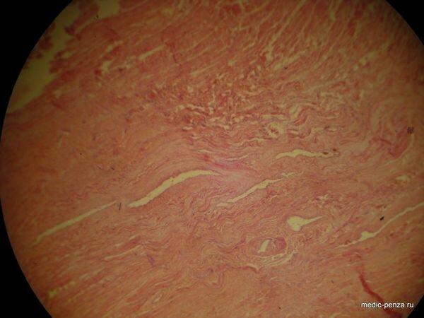 патологическая анатомия инфаркта миокарда инфаркта миокарда