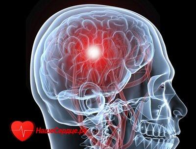 Причины инсульта у мужчин ⋆ Лечение Сердца