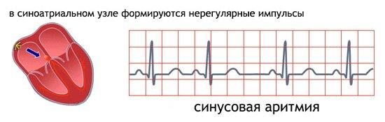 Синусовая аритмия при беременности ⋆ Лечение Сердца