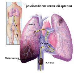 Уздг при атеросклерозе сосудов головы и шеи