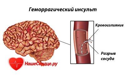 Инсульт геморрагический левая сторона последствия прогноз