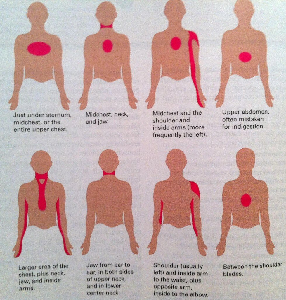 Признаки инфаркта миокарда у женщин ⋆ Лечение Сердца
