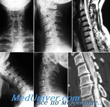 Шейный остеохондроз и гипертония