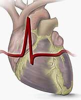 Хроническая сердечная недостаточность 2 фк nyha что это такое