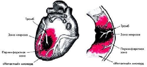 transmuralnyj infarkt miokarda 1 - Was ist das Merkmal des transmuralen Myokardinfarkts?