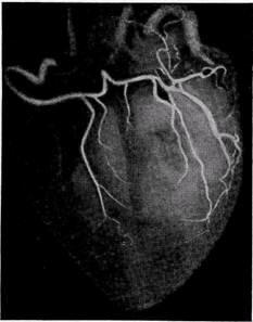 Анатомия коронарного русла