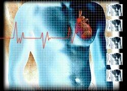 Лфк при ишемической болезни сердца ⋆ Лечение Сердца