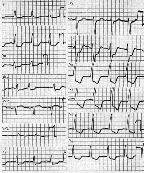 Трансмуральный циркулярный инфаркт миокарда