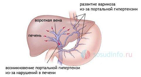 seks-pri-vnutricherepnoy-gipertenzii