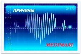 Причины сильного сердцебиения в состоянии покоя