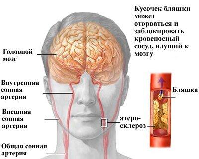 препараты после инсульта отзывы