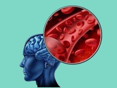 Лечение инсульта шишками сосны